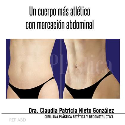 abdomen marcación resultado