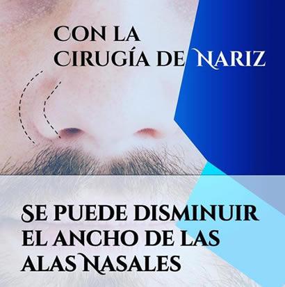 Alas nasales