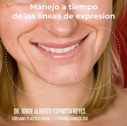 Líneas expresión marioneta