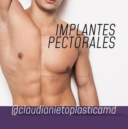 Aumento pectoral implante