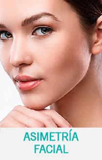 Asimetria Facial