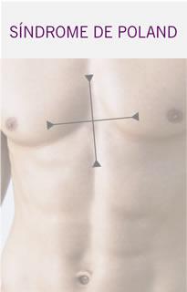 Asimetría Pectoral