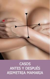 Casos asimetría mamaria