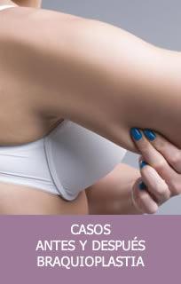 Casos braquioplastia