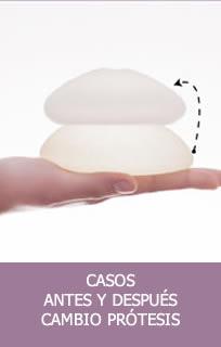 Casos cambio prótesis senos