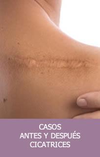Casos cicatrices