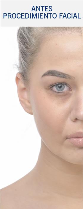 Casos Cirugia Facial