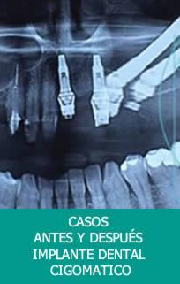 Casos Implante Dentales Cigomáticos