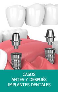 Casos Implante Dentales