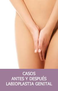 Casos labioplastia