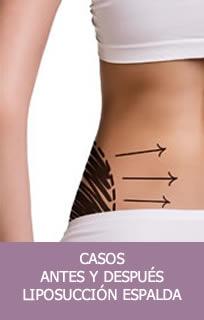 Casos liposucción espalda