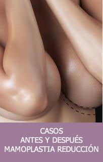 Casos mamoplastia reducción