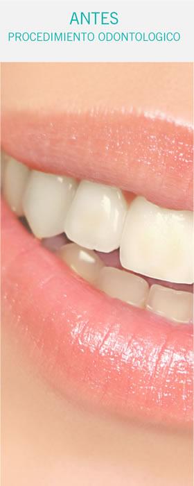 Casos Odontología
