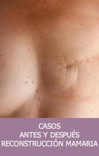 Casos reconstrucción mamaria