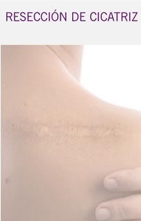 Cicatriz piel