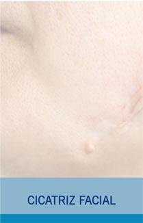 Cicatrices Cara