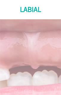 Frenillectomia Labial