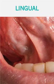 Frenillectomia Lingual