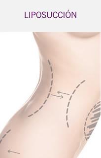 Cintura Liposucción