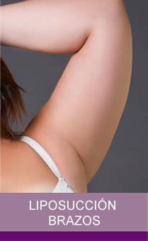 Liposucción Brazos