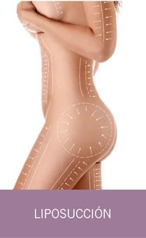 Cirugía Liposucción
