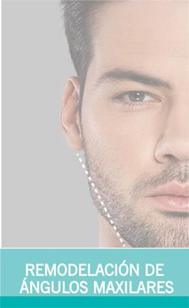 Cirugía Maxilar