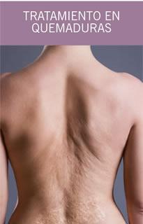 Quemaduras piel