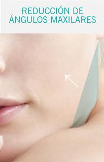 Reducción maxilar