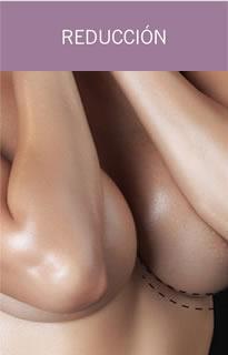 Reducción senos