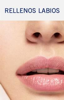 Rellenos de Labios