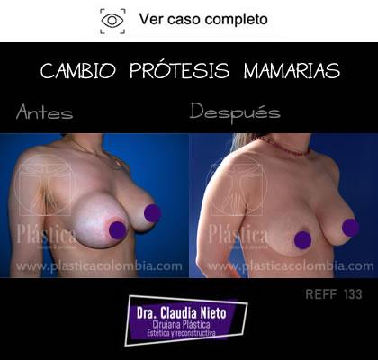 Cambio Prótesis Mamarias Resultado