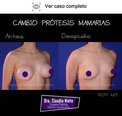 Cambio Prótesis Mamaria Antes y Después