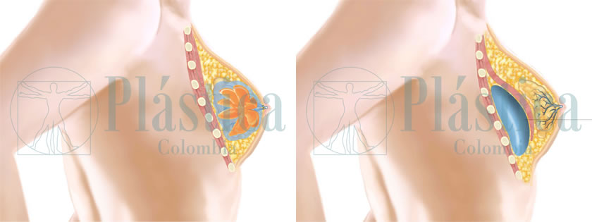 Ilustración cambio prótesis mamarias