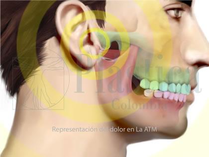 candidato articulacion temporomandibular