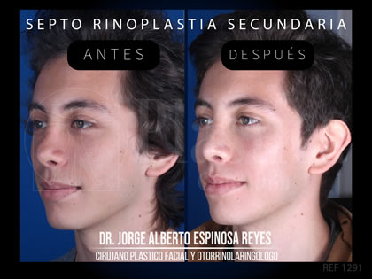 Foto Septorrinoplastia Secundaria