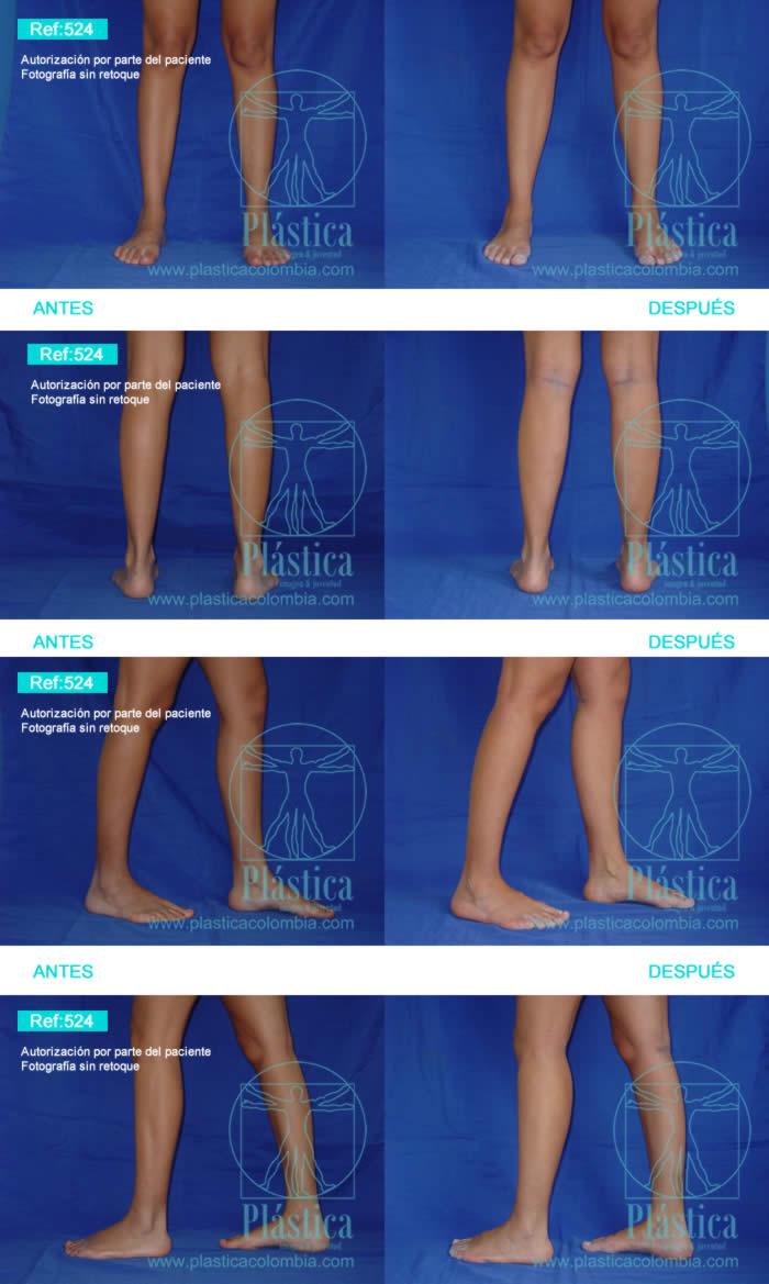 Fotografía aumento piernas 524