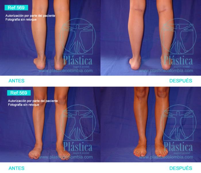 Fotografía aumento piernas 569