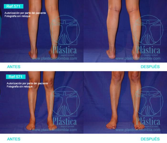 Fotografía aumento piernas 571