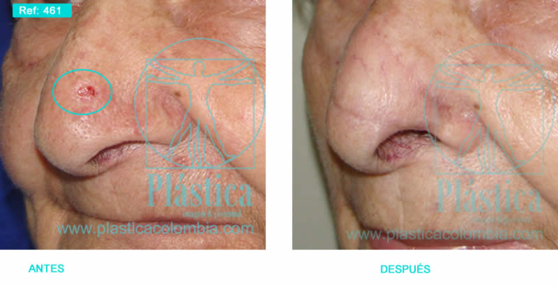 Foto cáncer de piel