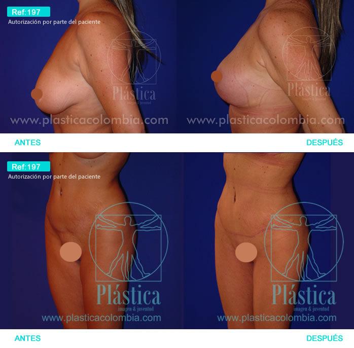 Foto levantamiento senos y corrección cicatriz