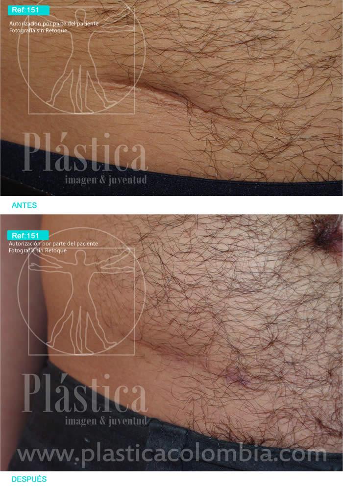 Cicatriz Abdomen