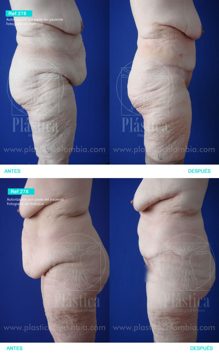 Cirugía Postbariátrica y Abdominoplastia