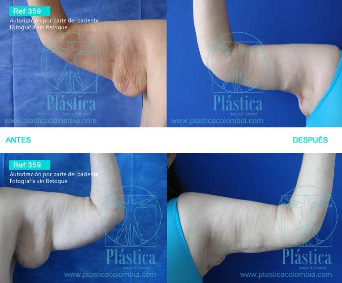 Cirugía Postbariátrica y braquioplastia