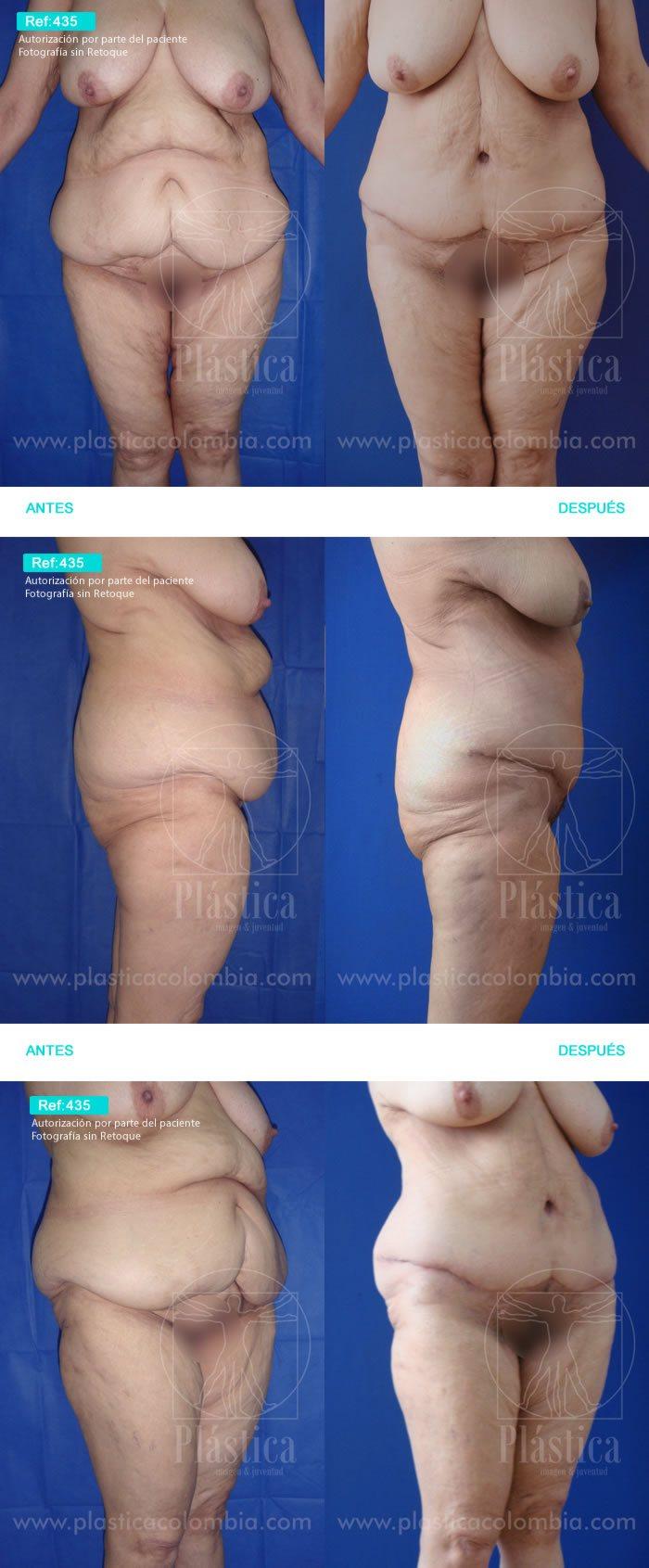 Cirugía Postbariátrica y Lipectomia