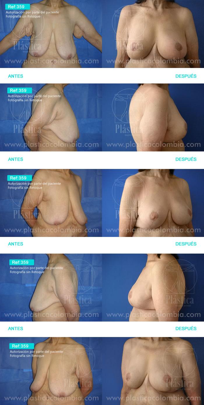 Cirugía Postbariátrica y Pexia Mamaria