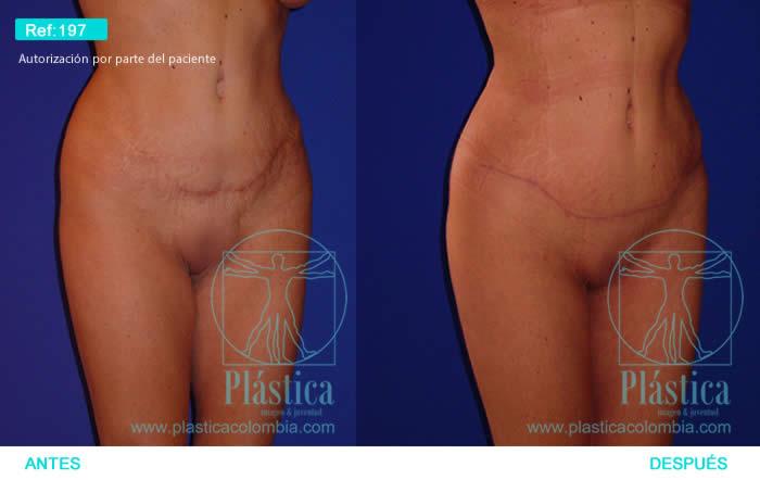 Foto cicatriz abdomen y monte púbico