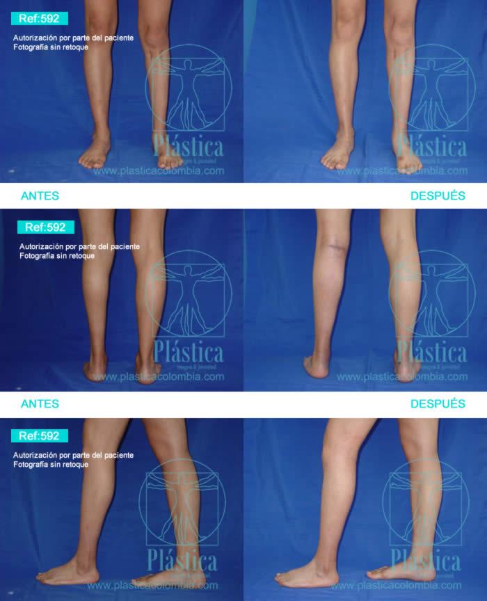 fotografía implante piernas 592