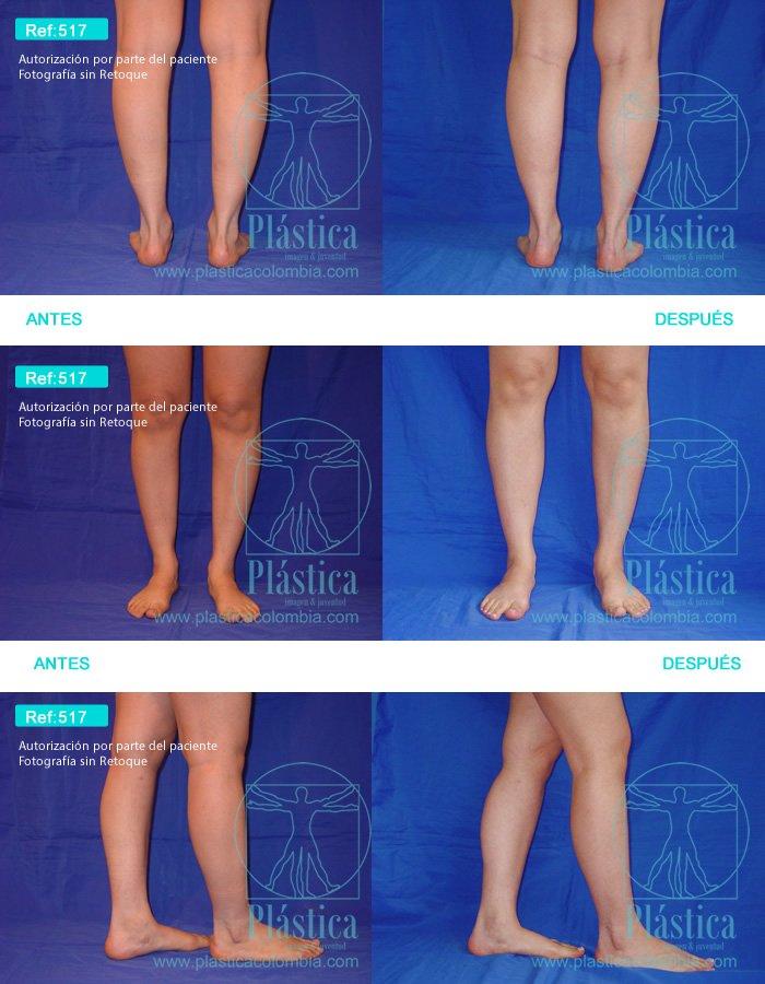 Fotografía Implante Piernas 501