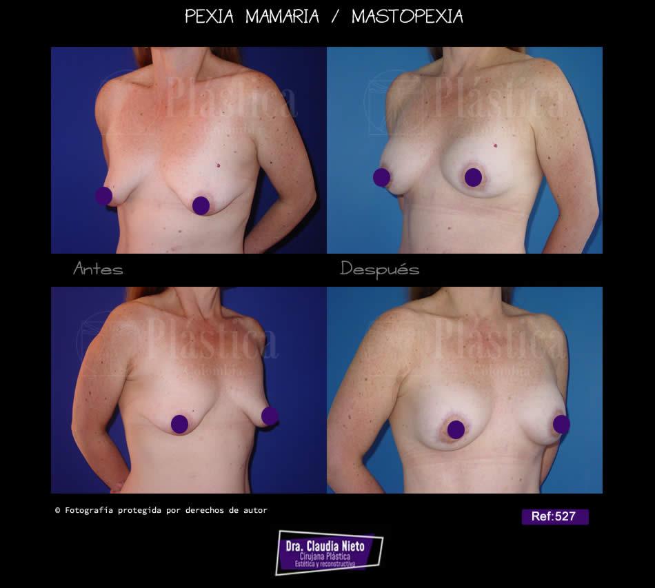 Levantamiento senos con Prótesis