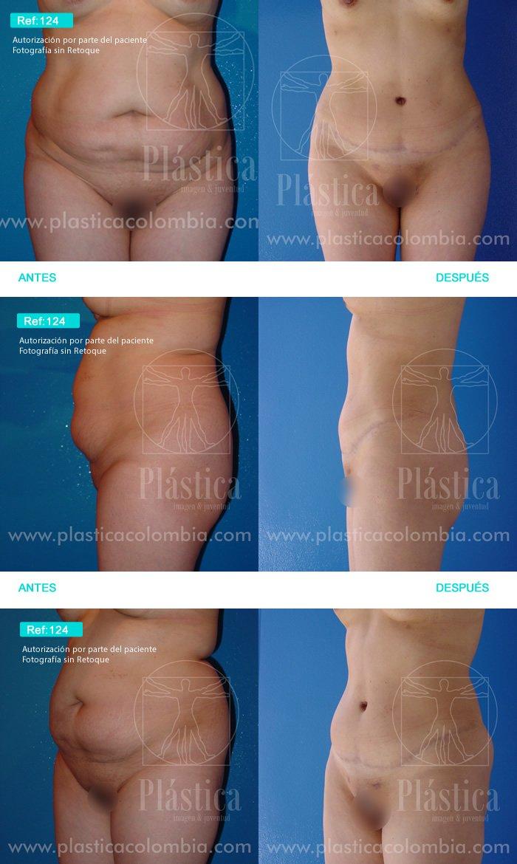 Foto Liposucción con Lipectomia 124